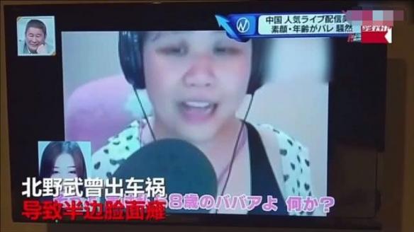 坦克治疗面瘫?乔碧萝视频上日本综艺节目逗笑面瘫北野武